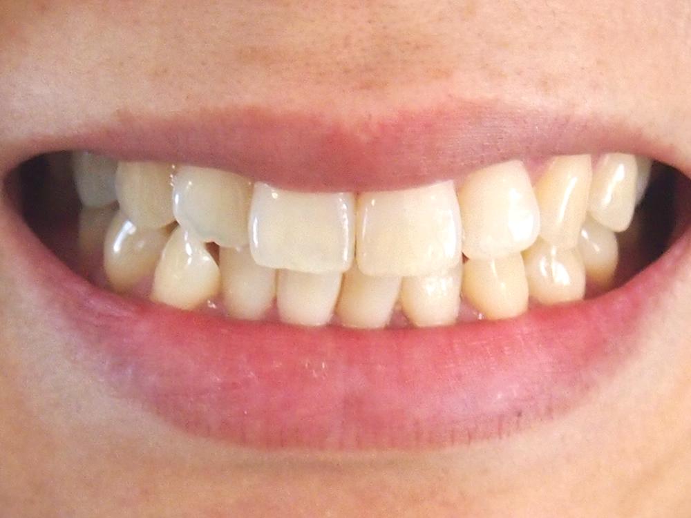 歯周病予防のポイントは、正しいブラッシングと生はちみつ!